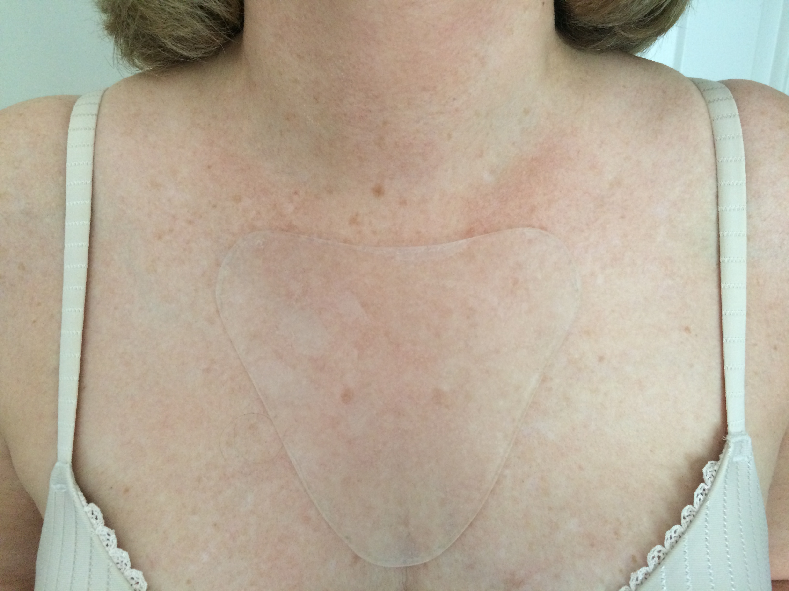 Prevent neck and chest wrinkles