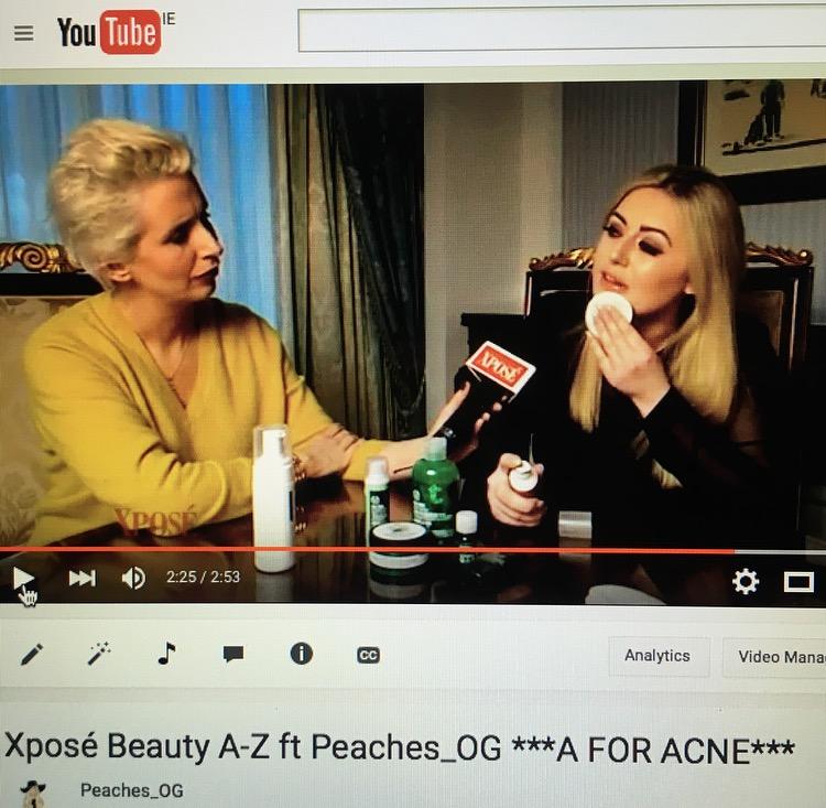 Xposé Beauty A-Z ***A FOR ACNE***