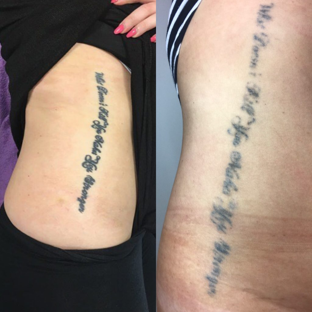 Tattoo Removal: The Good, The Bad & The Ugly